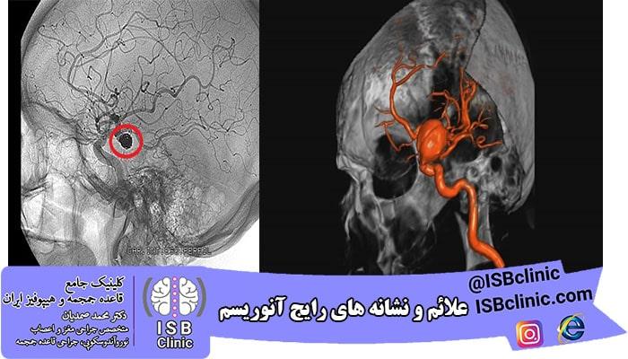 درمان آنوریسم مغزی پاره نشده
