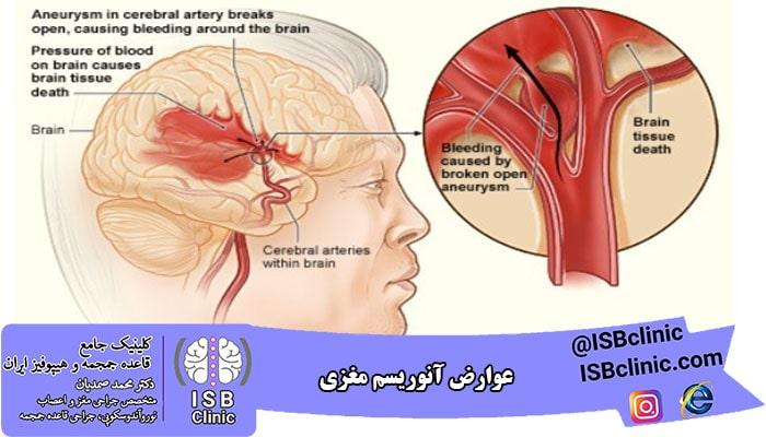 عوارض آنوریسم مغزی