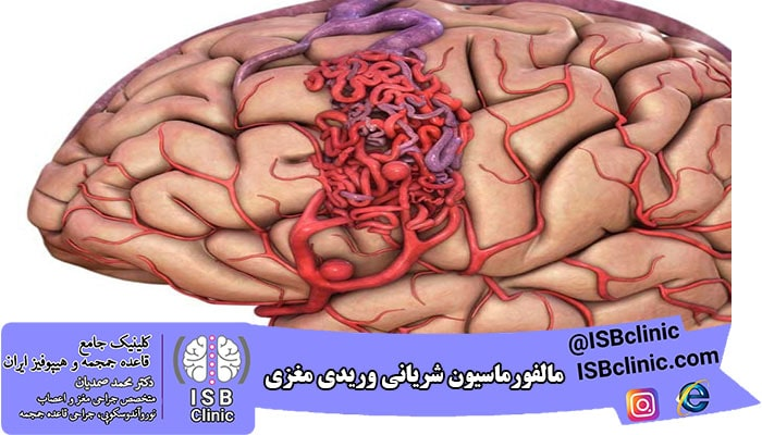 مالفورماسیون شریان-وریدی مغز