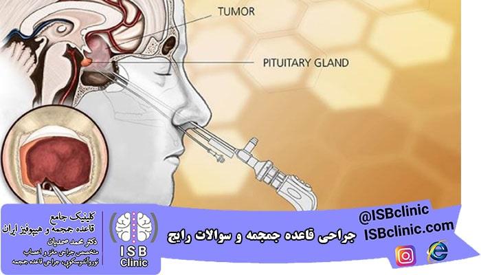 جراحی قاعده جمجمه | حال اگر نشت مایع مغزی-نخاعی رخ داد چگونه تشخیص دهیم