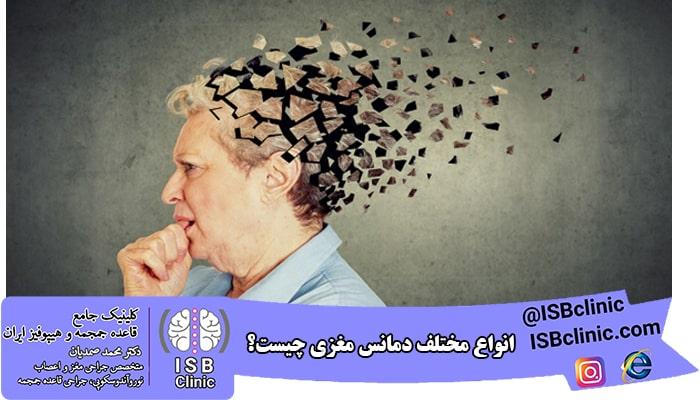 انواع مختلف دمانس مغزی چیست؟