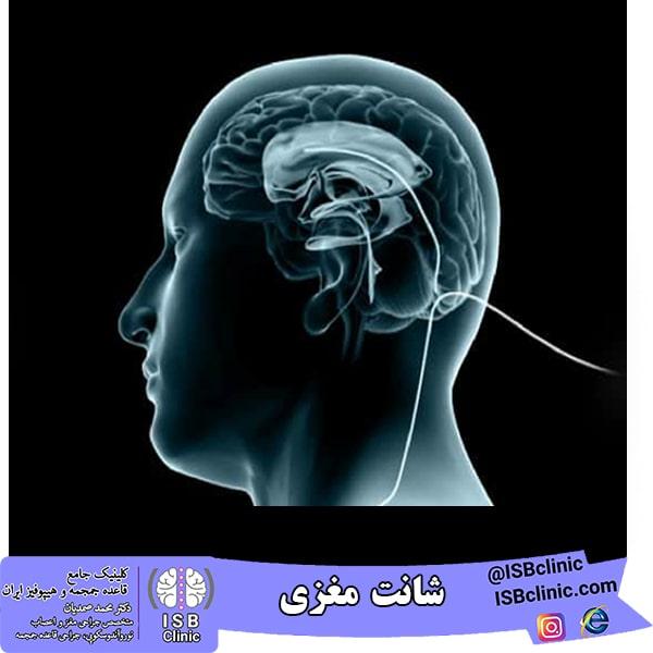 شانت مغزی -min