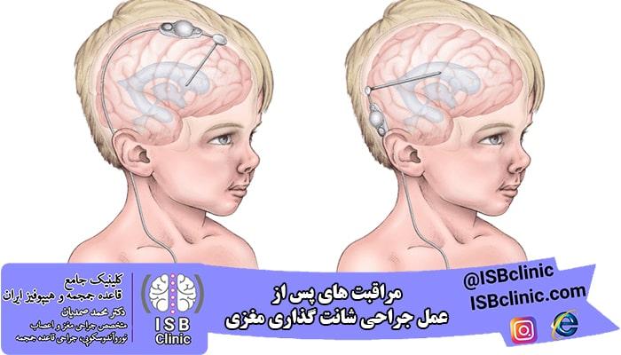 مراقبت های پس از عمل شانت گذاری مغزی