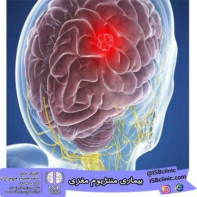 بیماری مننژیوم مغزی