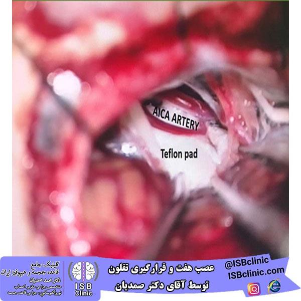عصب هفت و قرارگیری تفلون جهت درمان که توسط آقای دکتر صمدیان و تیم جراحی ایشان عمل شده است.