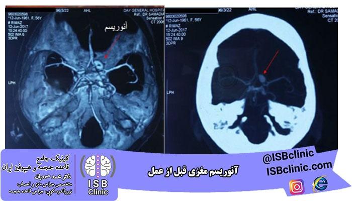 آنوریسم مغزی قبل از عمل
