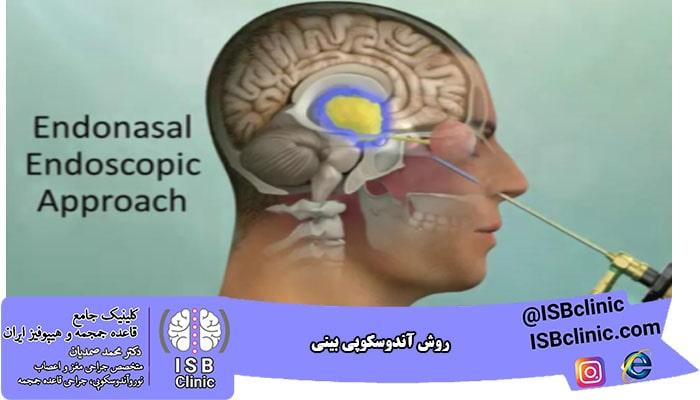 روش آندوسکوپی بینی