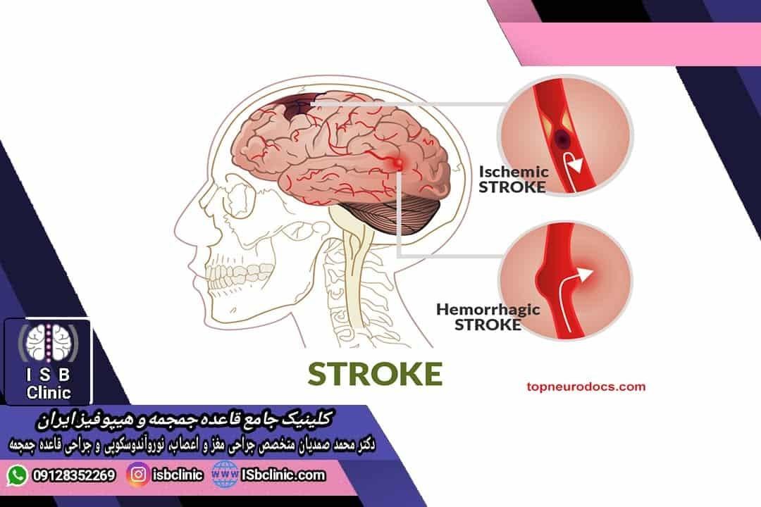 انواع سکته مغزی در کودکان