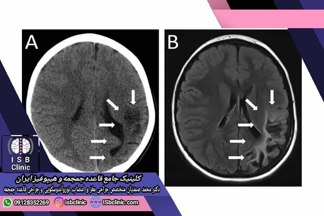 تشخیص سکته مغزی در کودکان