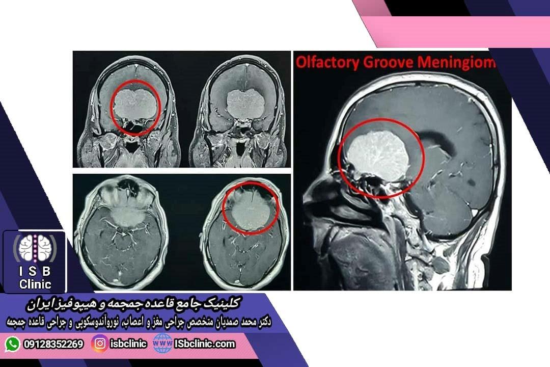 تومور مننژیوم الفکتوری