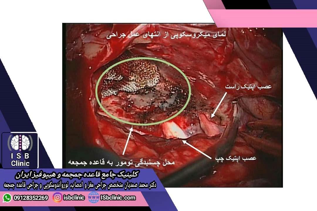 درمان تومور مننژیوم الفکتوری