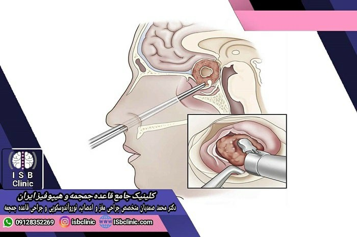 عوارض احتمالی هیپوفیزکتومی