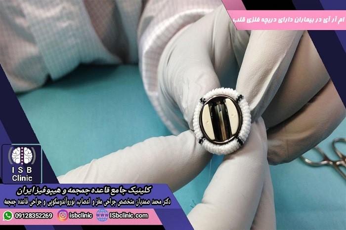 آیا ام آر آی در بیماران دارای دریچه مصنوعی فلزی قلب ممنوعیت دارد؟