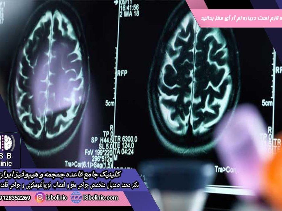 ام آر آی مغز