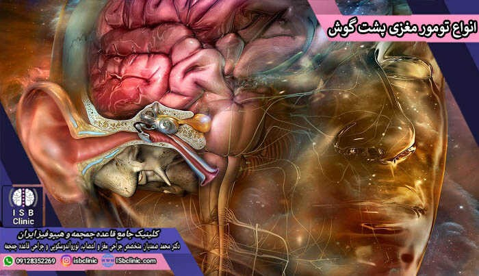 انواع تومور مغزی پشت گوش