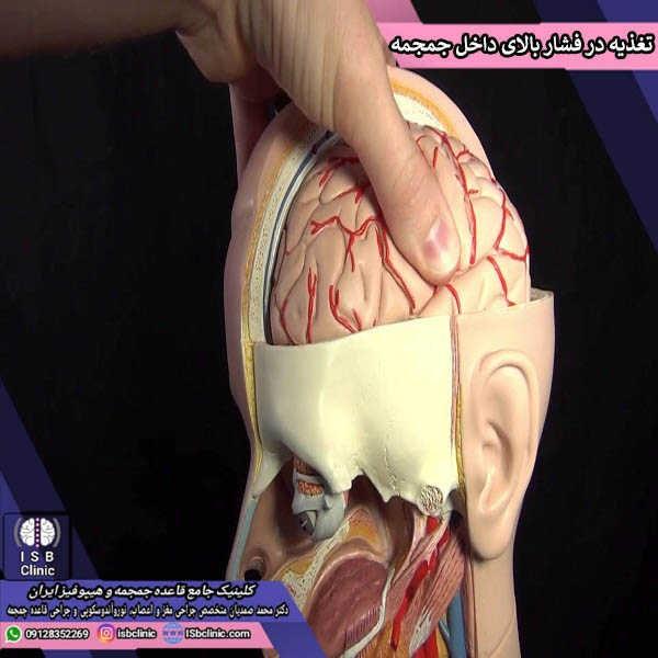 تغذیه در فشار بالای داخل مغز