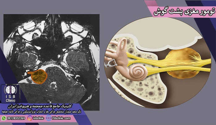 تومور مغزی پشت گوش چیست؟