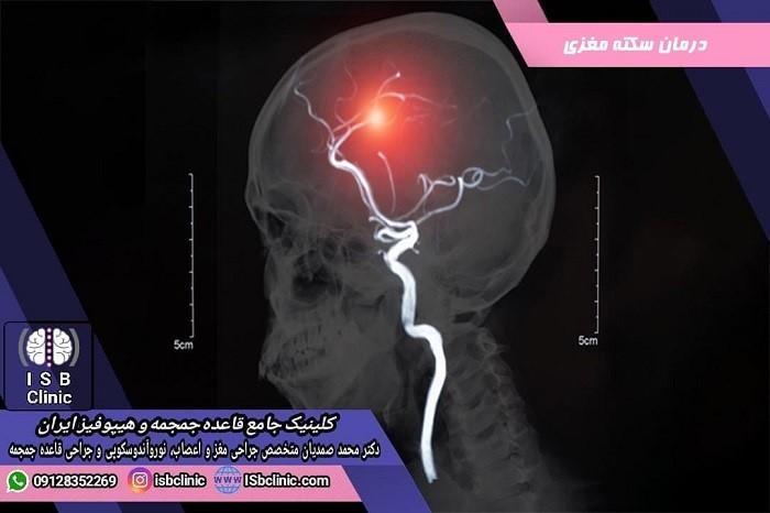 درمان سکته مغزی