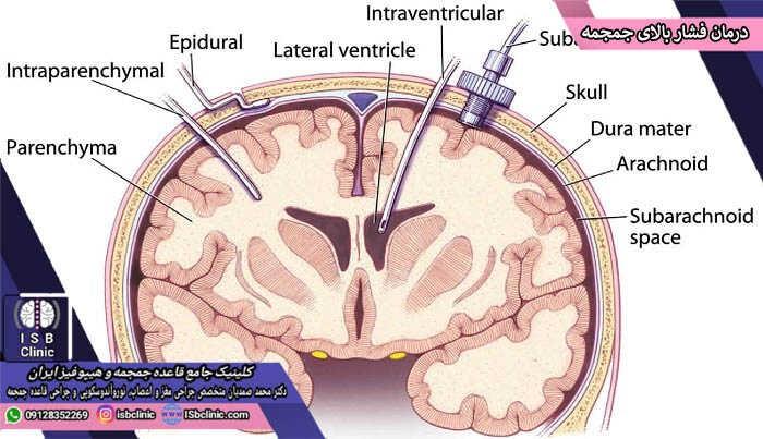 درمان فشار داخل جمجمه