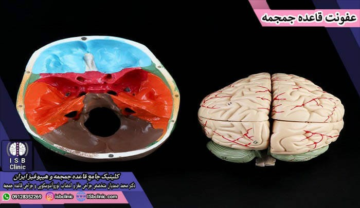 عفونت مغزی