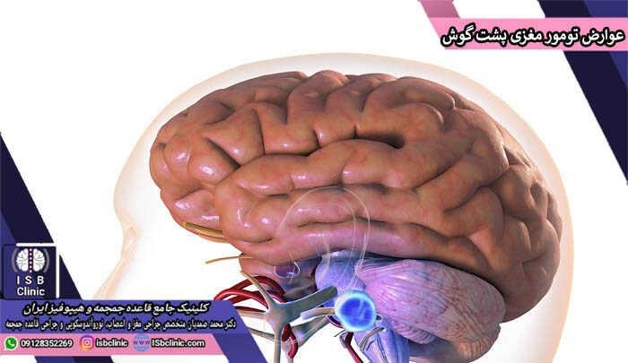 علایم و عوارض تومور مغزی پشت گوش