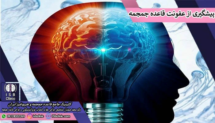 پیشگیری از عفونت مغزی قاعده جمجمه