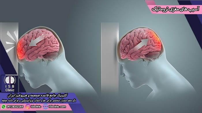 آسیب مغزی تروماتیک چیست؟