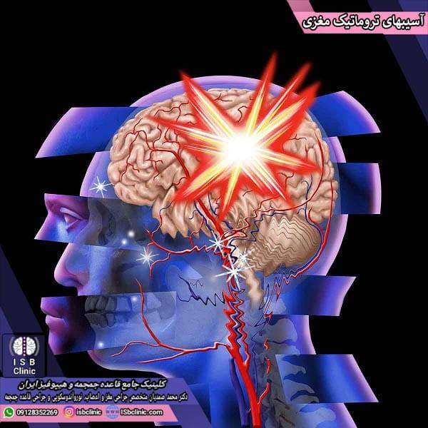 آسیب های تروماتیک مغزی