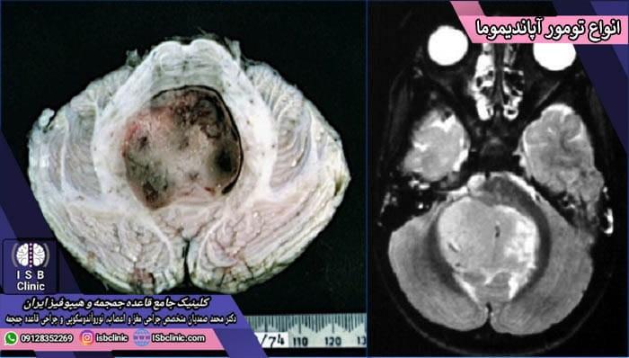 انواع تومورهای آپاندیموما