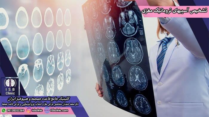 تشخیص آسیب های تروماتیک مغزی