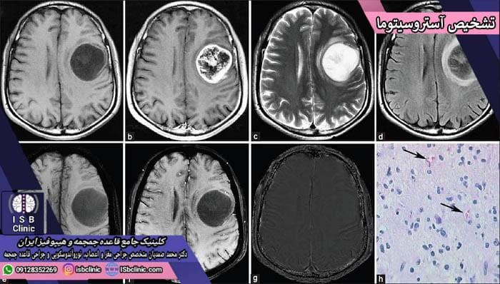 تشخیص تومورهای مغزی آستروسیتوما