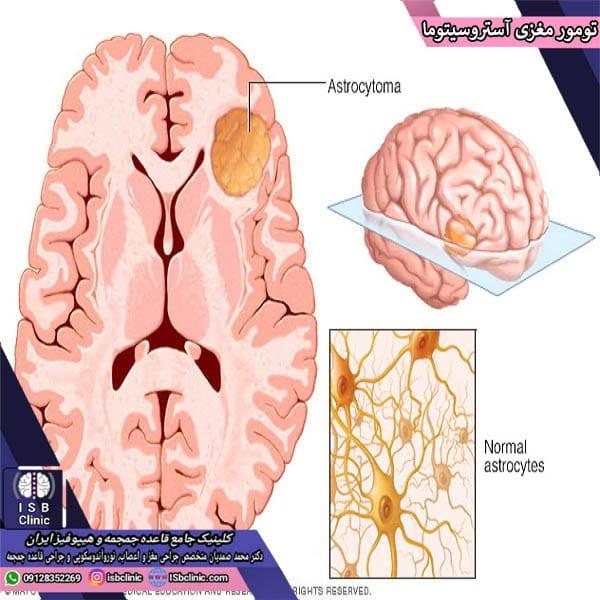 تومور مغزی آستروسیتوما چیست