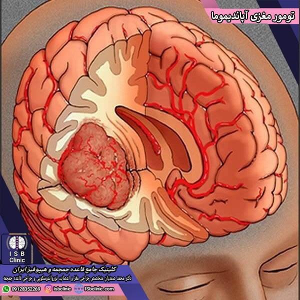تومور مغزی آپاندیموما