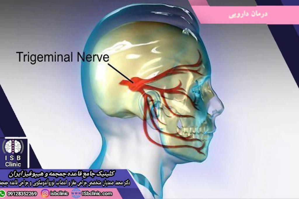 تومورهای مغزی
