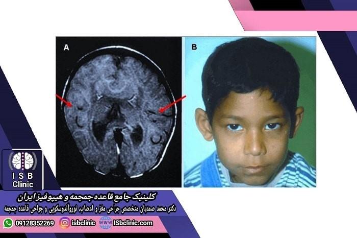 علائم سندروم هولوپروزنسفالی