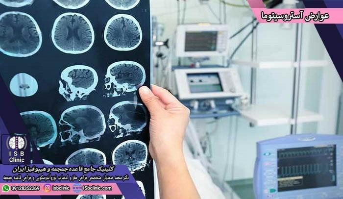 علایم و عوارض تومور مغزی آستروسیتوما