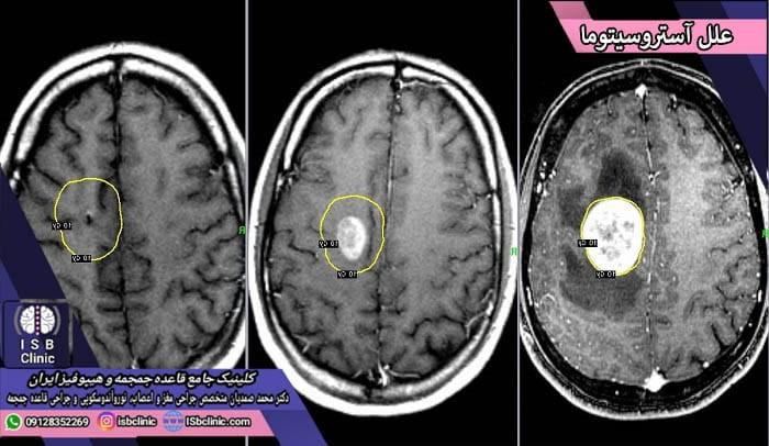 علل بروز انواع تومورهای آستروسیتوما