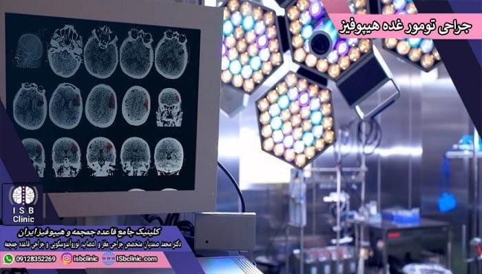انواع درمان تومورهای غده هیپوفیز