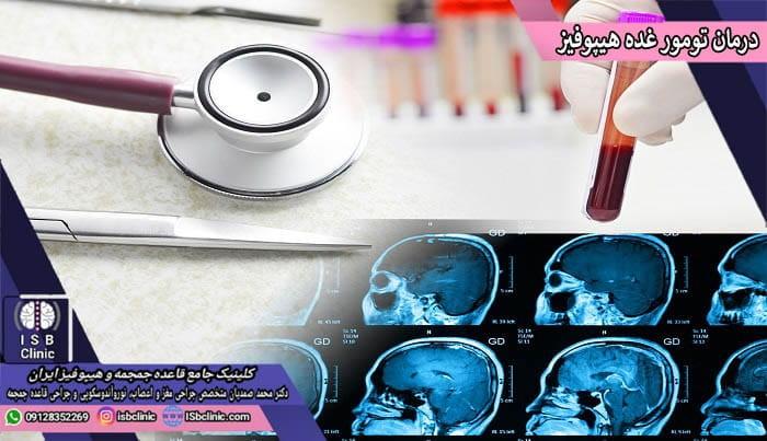 انواع درمان های تومورهای غده هیپوفیز