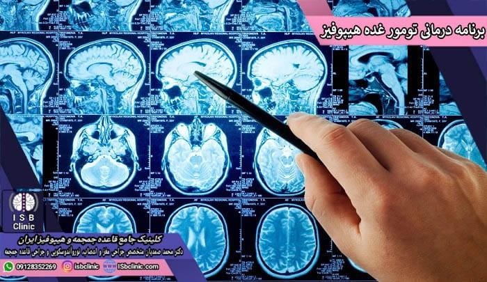 برنامه درمانی تومور غده هیپوفیز
