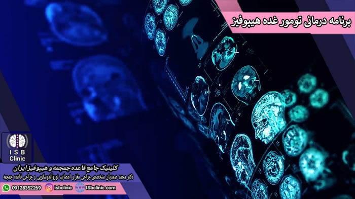 برنامه های درمانی تومورهای غده هیپوفیز