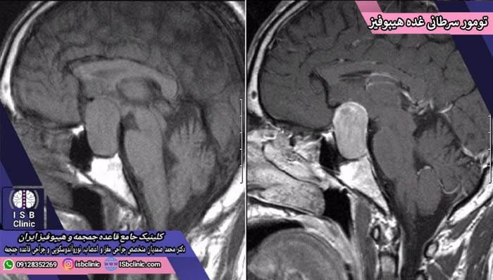تومورهای سرطانی غده هیپوفیز