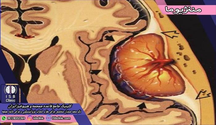 تومورهای مغزی مننژیوما