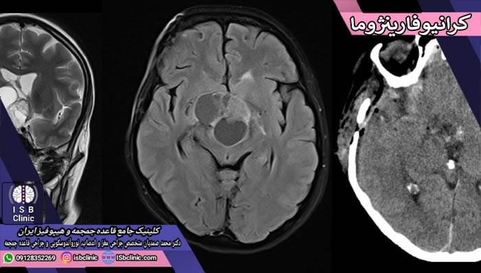 تومورهای کرانیو فارینوژوما