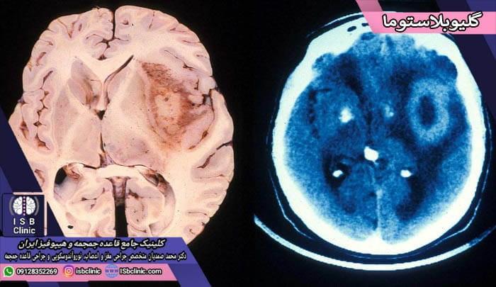 تومورهای گلیو بلاستوما