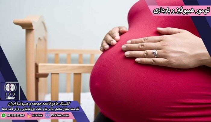 تومور هیپوفیز و بارداری