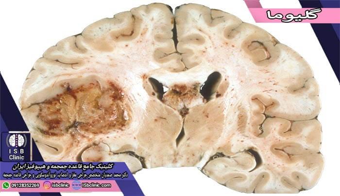 تومور گلیوم مغز