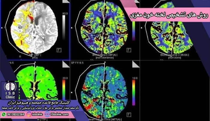 روش های تشخیص لخته شدن خون در مغز