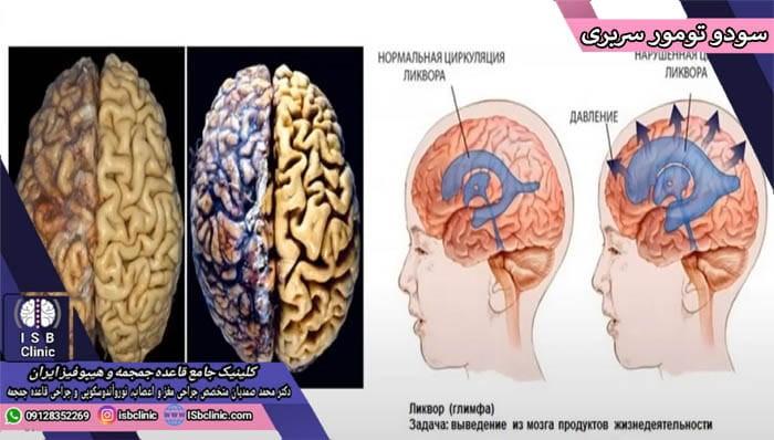 سودوتومور سربری