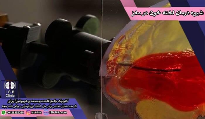 شیوه های درمان لخته شدن خون در مغز